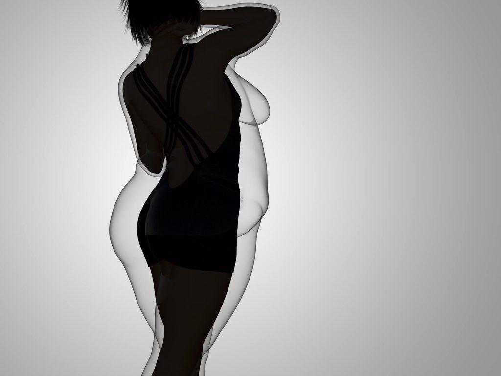 príčiny obezity